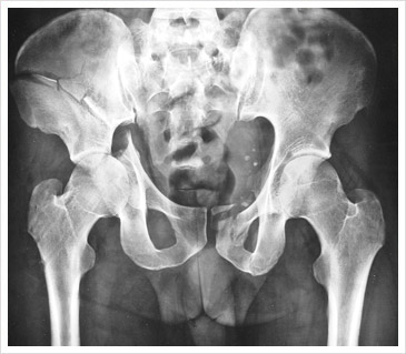 X-ray before Hip Surgery