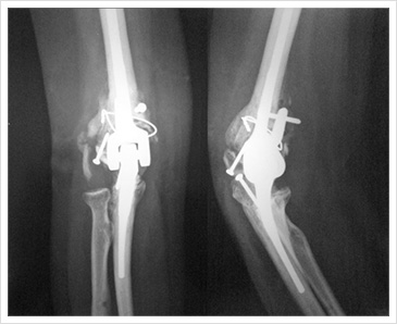 Elbow Joint Reconstruction