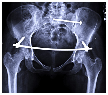 X-ray after Surgery