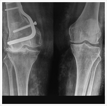 Right Knee Lateral Compartment Osteoarthrosis